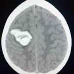 Разрыв АВМ правой теменной доли головного мозга, внутримозговая гематома, тампонада желудочков