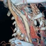 Наши возможности в диагностике стенотических процессов брахиоцефальных аретрий