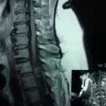 Удаление экстрамедуллярной, интрадуральной опухоли (менингиомы) спинного мозга на уровне Тн2-Тн3  позвонков