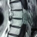Удаление интрадуральной опухоли спинного мозга на уровне Тн7 — позвонка