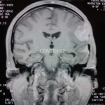 Связь между ЧМТ и возникновением опухоли головного мозга. Она есть?