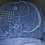 Отчет о моей хирургической работе за 2012г. (8 рабочих месяцев)