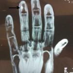 Удаление опухоли дистальной фаланги 4 пальца левой кисти (возможно опухоль Барре-Массона)