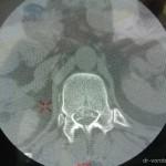 Лечение осложненного, взрывного перелома тела Тн12-позвонка