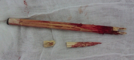 фото инородного тела после