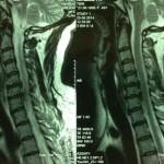 Шейный остеохондроз: лечение