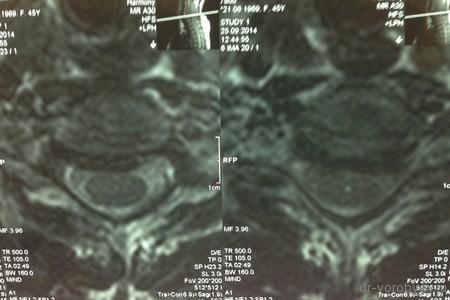 МРТ аксиал до операции л-на
