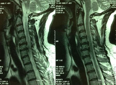 МРТ сагиттал л-на до операции