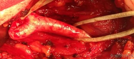 сразу после артериолиза