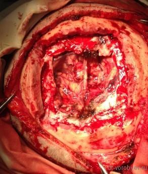 фото на операции
