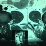 Импланты позвоночника поясничного отдела