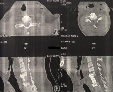 спондилит шея КТ после операции