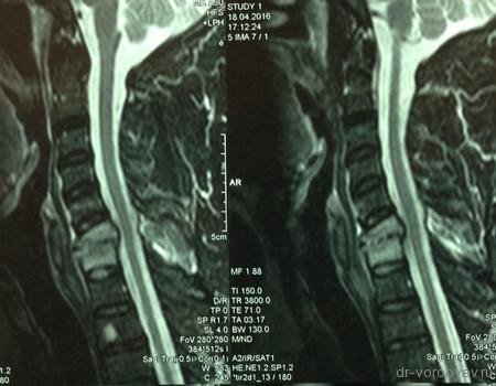 спондилит шея МРТ до операции
