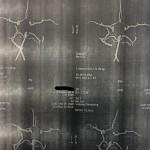 Аневризма сосудов головного мозга. Операция