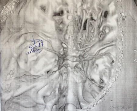 аневризма сосудов головного мозга операция