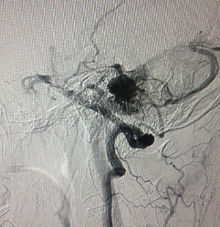 ЦАГ артериальная фаза