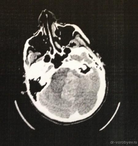 гематома до операции 1