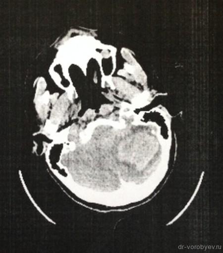 гематома до операции