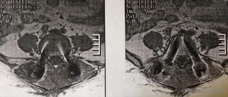 МРТ аксиал на L5 после лечения регресс дисцита