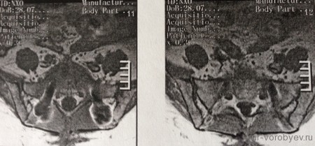 МРТ аксиал на S1 после лечения регресс дисцита