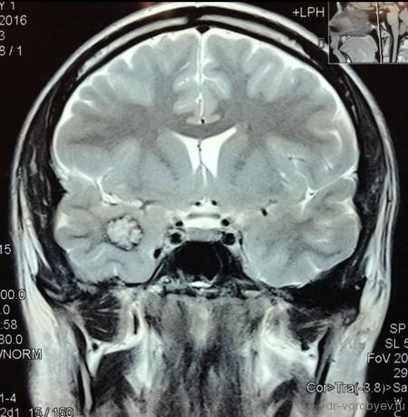 кавернома правой височной доли головного мозга