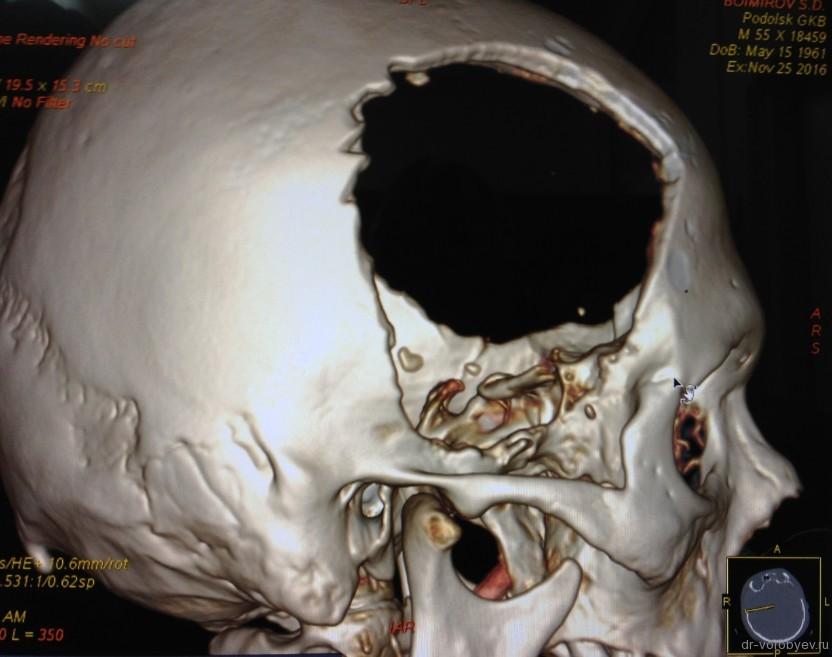 3d-kt-posle-operacii-sprava