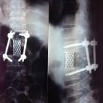 Транспедикулярная фиксация позвоночника. Реабилитация после операции