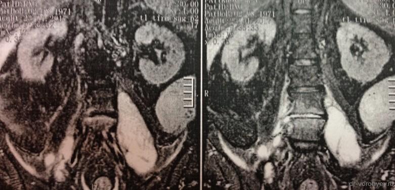 МРТ фронтал до операции